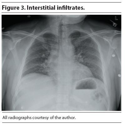 Interstitial Pneumonia Chest X-ray