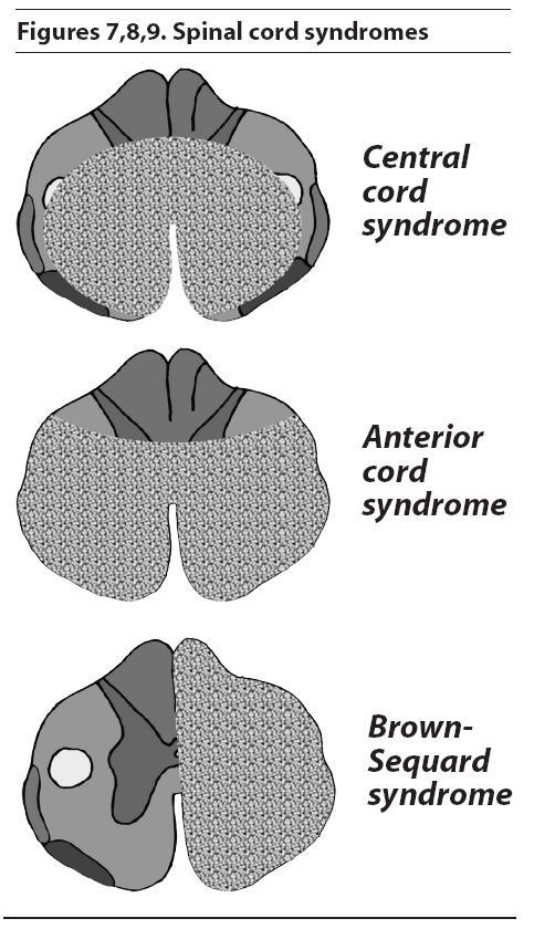 spinal cord injury case study nursing