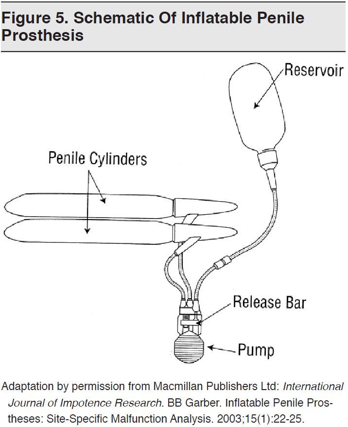 Figure 5. Schematic Of Inflatable Penile Prosthesis