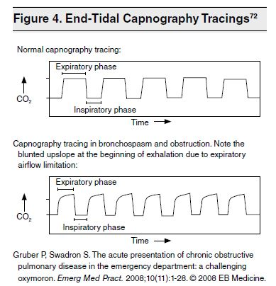 Figure 4. End-Tidal Capnography Tracings