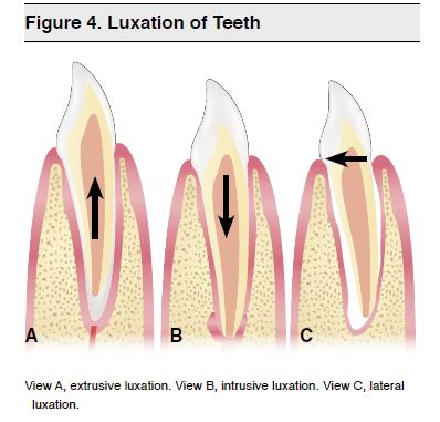 Figure 4. Luxation of Teeth
