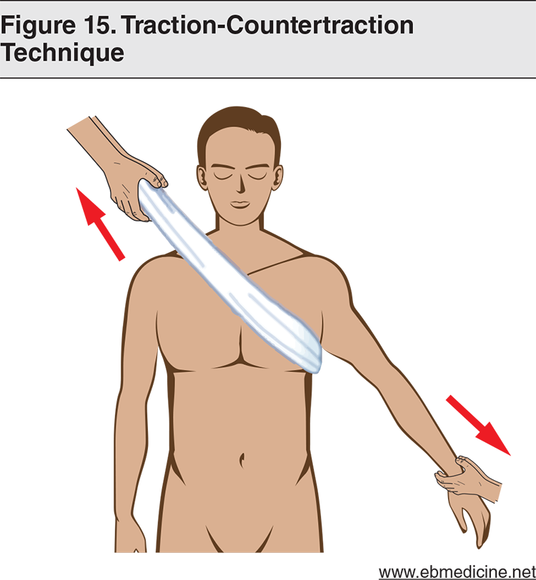 Figure 15. Traction-Countertraction Technique