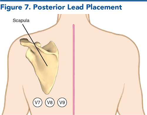 Figure 7. Posterior Lead Placement