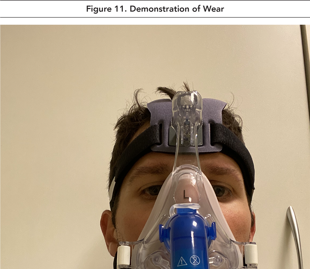 Figure 11. Viral Filter Before PEEP Valve on Helmet CPAP Device
