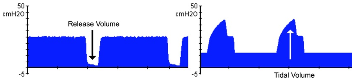 Figure 2. Tidal Volume during APRV Versus Conventional Ventilation