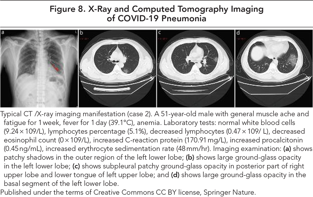 Figure 8. X-Ray and Computed Tomography Imaging of COVID-19 Pneumonia
