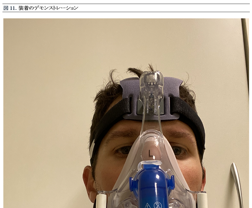 Japanese Figure 11. Viral Filter Before PEEP Valve on Helmet CPAP Device