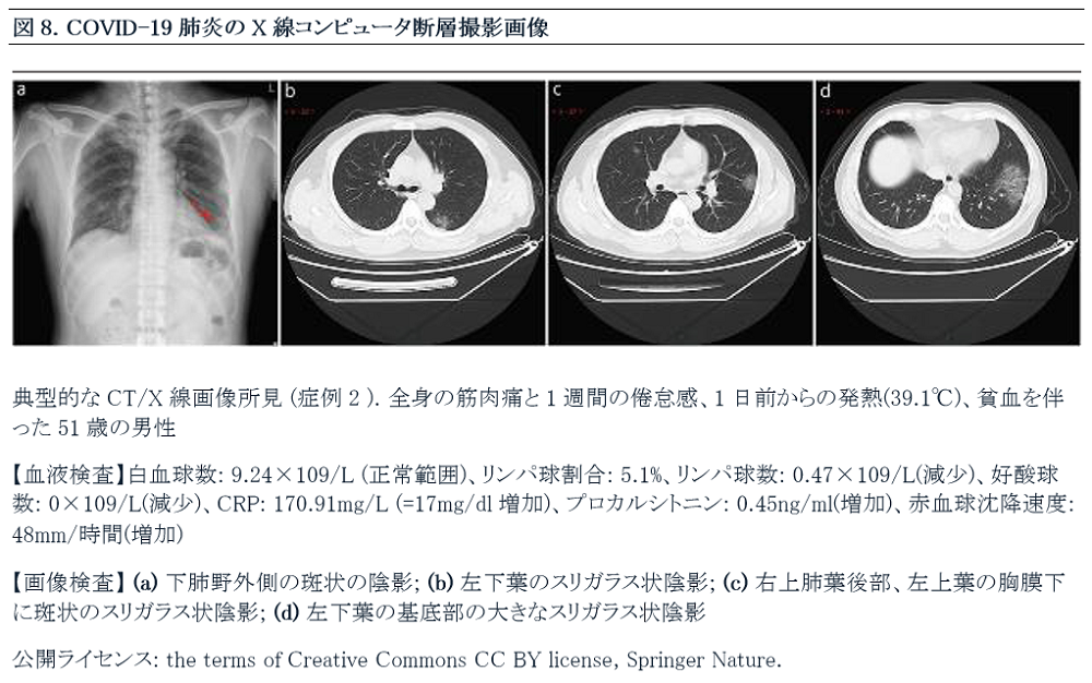 Japanese Figure 8. X-Ray and Computed Tomography Imaging of COVID-19 Pneumonia