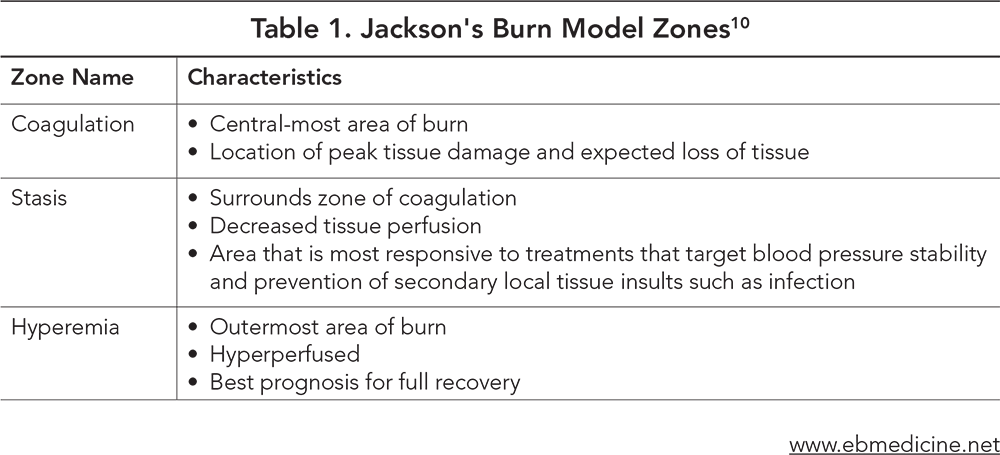 Table 1. Jackson's Burn Model Zones
