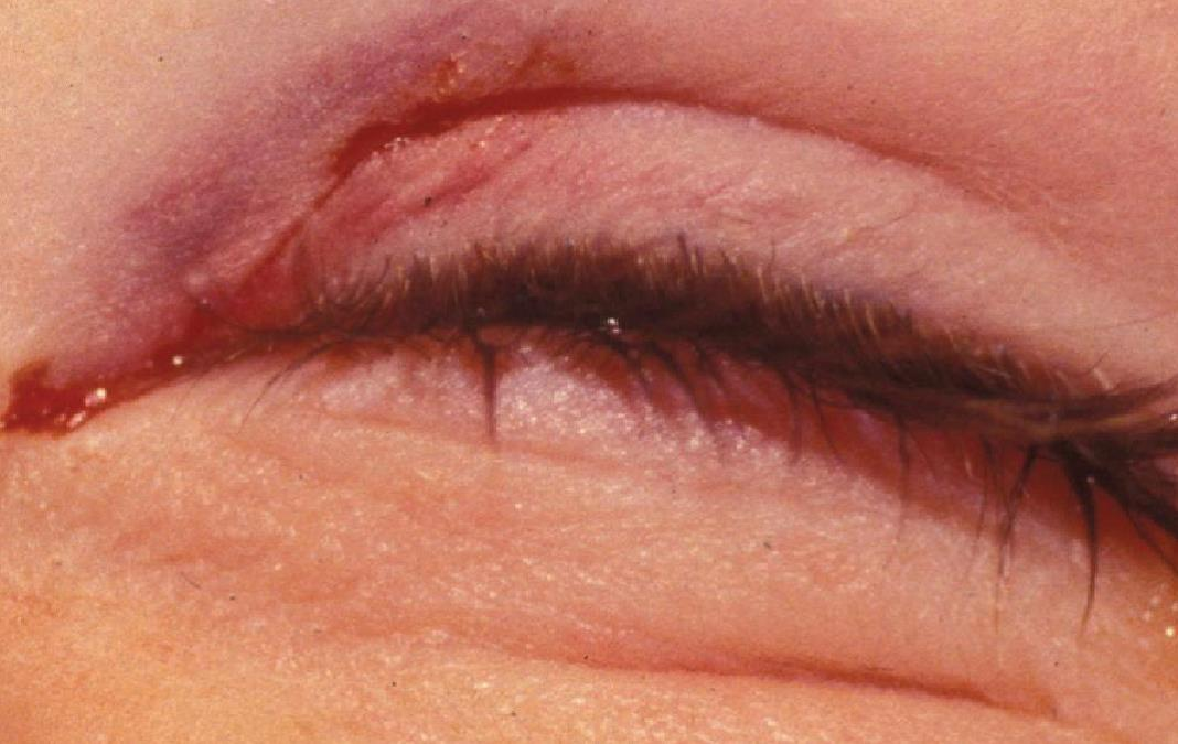 Subconjunctival 20hemorrhage in a 17-year-old boy