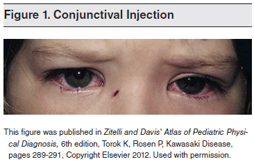 Conjunctival-Injection