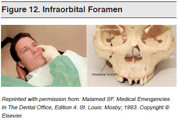Figure 12. Infraorbital Foramen