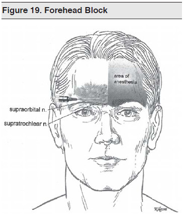 Figure 19. Forehead Block