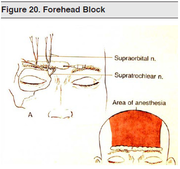 Figure 20. Forehead Block