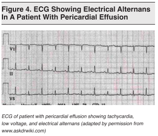 Image result for electrical alternans pericardial effusion