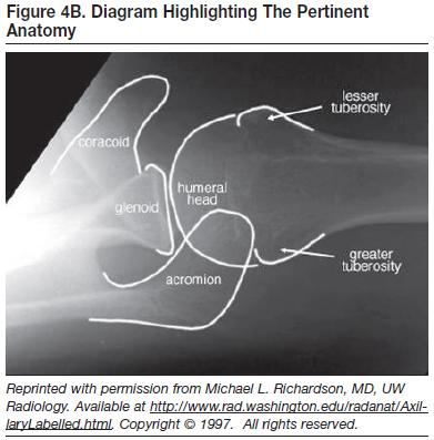 magnetic resonance imaging mri physics instrumentation Magnetic resonance imaging (mri)  however, due to the large footprint of mri instrumentation,  731 physics in mri.