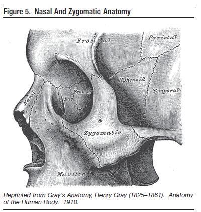 figure 5. nasal and zygomatic anatomy emergency medical practice, Human Body