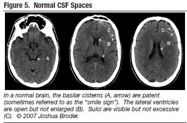 brain asymmetry and general anatomy General structural factors: hemispheric asymmetry, body-axis orientation, and interhemispheric interaction because sulcal asymmetry potentially may be explained by a more general brain asymmetry, the volume asymmetry of the hemispheres was computed.