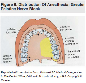 Figure 6. Distribution Of Anesthesia Greater Palatine Nerve Block