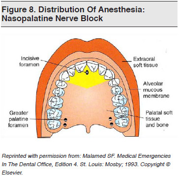 Figure 8. Distribution Of Anesthesia Nasopalatine Nerve Block