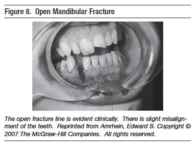 mandibular symphysis closure in a relationship