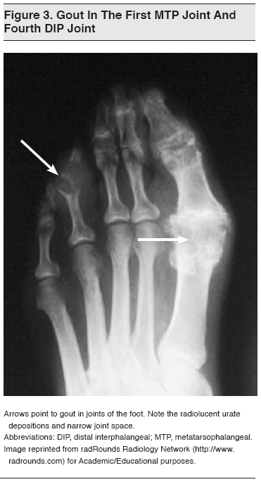 treatment for severe gout attack gout foot pain wiki can a gout attack go away without medication