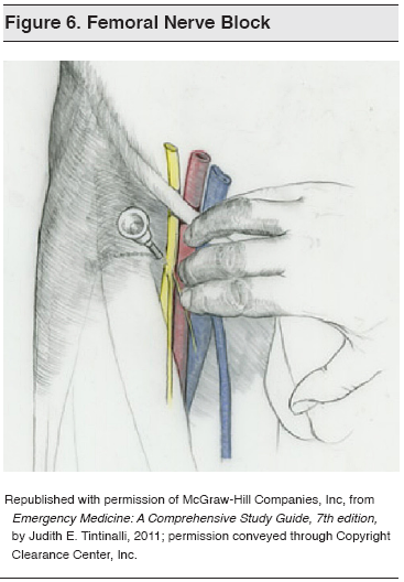figure 6_ femoral nerve block, Muscles