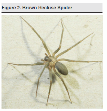 Figure 2. Brown Recluse Spider